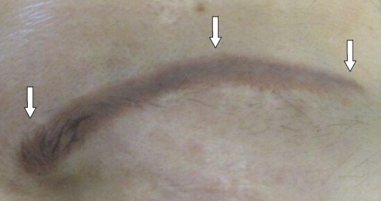 Quotes by carol saline like success for Saline tattoo removal