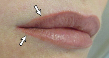 Permanent makeup lips before and after makeup vidalondon for Lip tattoo fade